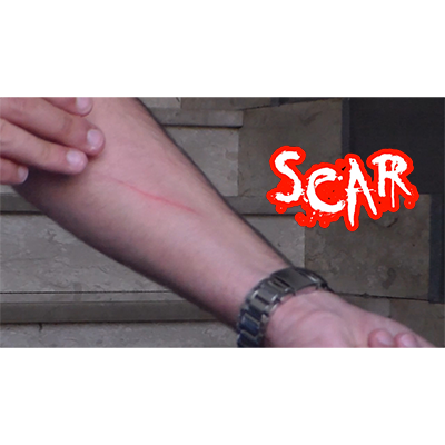 SCAR Video DOWNLOAD
