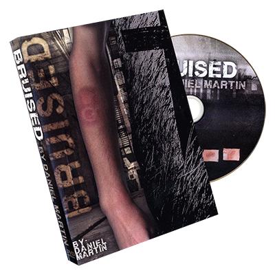 Bruised by Daniel Martin